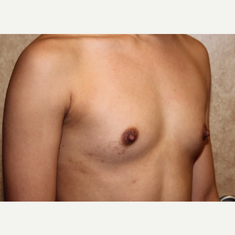 Saline Implants - Breast Augmentation before 3324921