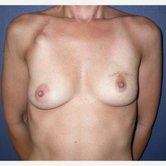 45-54 year old woman treated with Breast Reconstruction before 3241134