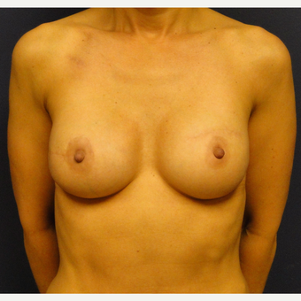 45-54 year old woman treated with Breast Reconstruction after 3241134