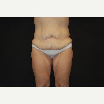 35-44 year old woman treated with Thigh Lift before 2643347