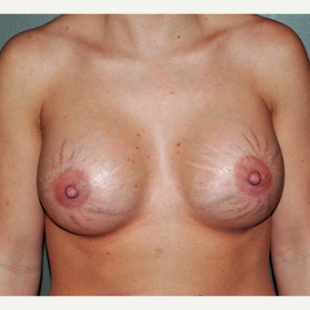 The Effect of Breast Implants on Stretch marks after 3777872