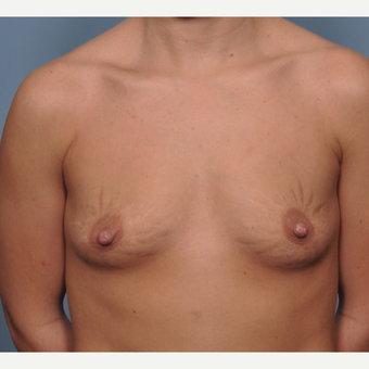 The Effect of Breast Implants on Stretch marks before 3777872