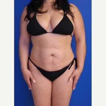 35-44 year old woman treated with Tummy Tuck before 2553597