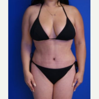 35-44 year old woman treated with Tummy Tuck after 2553597