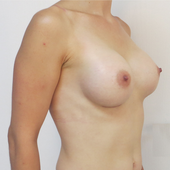 25-34 year old woman treated with Breast Implants after 3695106