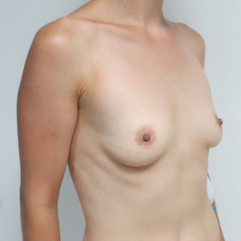 25-34 year old woman treated with Breast Implants before 3695106