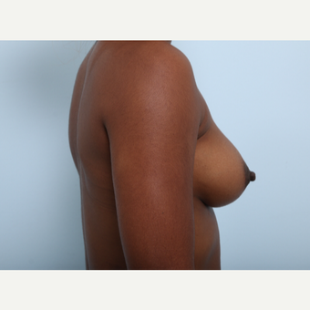 Breast Augmentation before 3345140