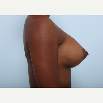 Breast Augmentation after 3345140