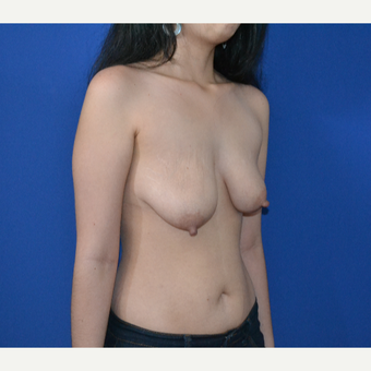 25-34 year old woman treated with Breast Lift before 3466567