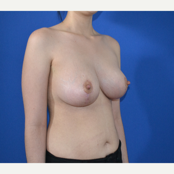 25-34 year old woman treated with Breast Lift after 3466567