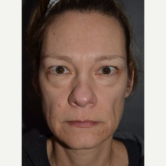 45-54 year old woman treated with Brow Lift, Bilateral Upper and Lower Blepharoplasty. before 1832807