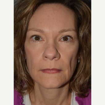 45-54 year old woman treated with Brow Lift, Bilateral Upper and Lower Blepharoplasty. after 1832807