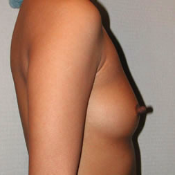 Breast Augmentation before 3680757