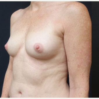 35-44 year old woman treated with Breast Augmentation before 3529786