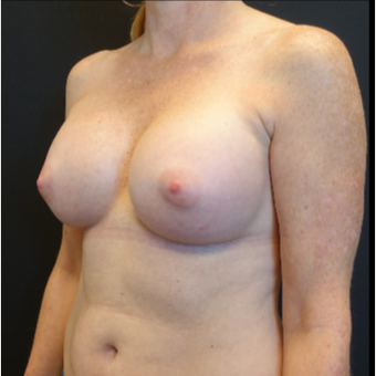 35-44 year old woman treated with Breast Augmentation after 3529786