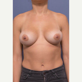 25-34 year old woman treated with Breast Augmentation after 3381394