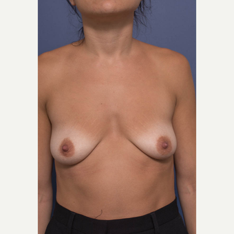 25-34 year old woman treated with Breast Augmentation before 3381394