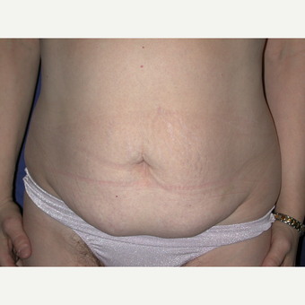 35-44 year old woman treated with Tummy Tuck before 3766059