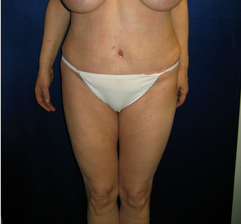 35-44 year old woman treated with Tummy Tuck after 3766059