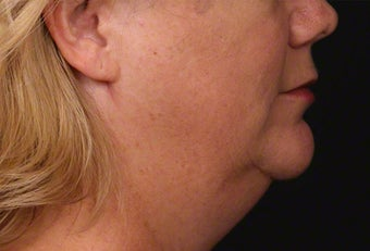 45-54 year old woman treated with Kybella before 2427444