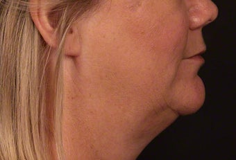 45-54 year old woman treated with Kybella after 2427444