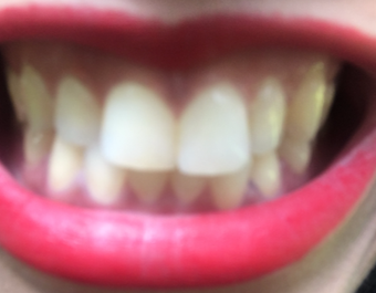 22 year old woman treated with 16 Porcelain Veneers
