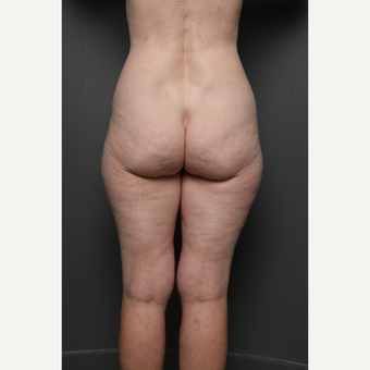 Liposuction before 3803854