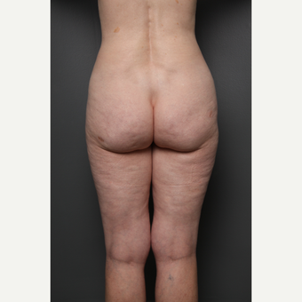 Liposuction after 3803854