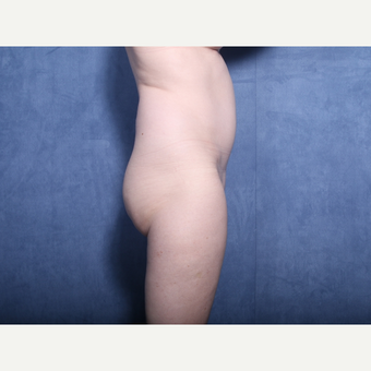 55-64 year old woman treated with Liposuction (view 2 of 2) before 3180218
