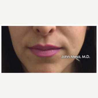 25-34 year old woman treated with Restylane for Lip Augmentation before 3059023