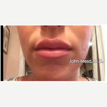 25-34 year old woman treated with Restylane for Lip Augmentation after 3059023