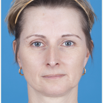 45-54 year old woman treated with Rhinoplasty before 3159558