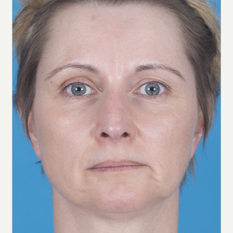 45-54 year old woman treated with Rhinoplasty after 3159558