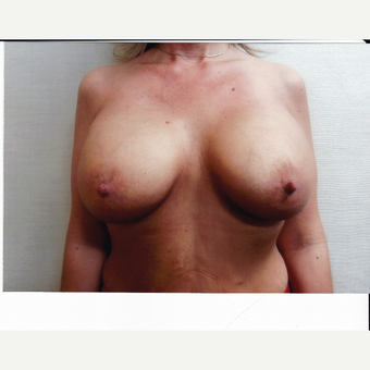 35-44 year old woman treated with Breast Augmentation after 3523833