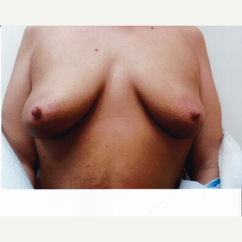 35-44 year old woman treated with Breast Augmentation before 3523833