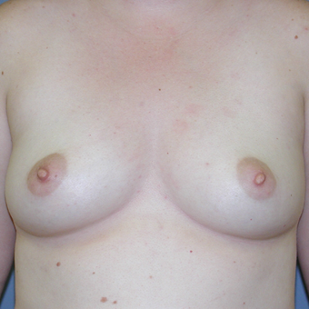 29 year old woman treated with Breast Augmentation before 3042553