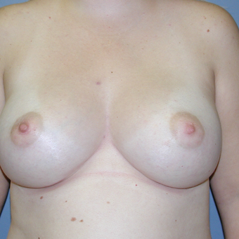 29 year old woman treated with Breast Augmentation after 3042553