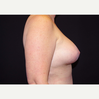 45-54 year old woman treated with Breast Implants after 3441318