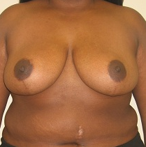 Breast Reduction after 1216609