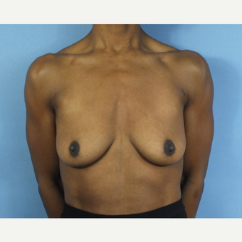 35-44 year old woman treated with Breast Lift with Implants before 3163154