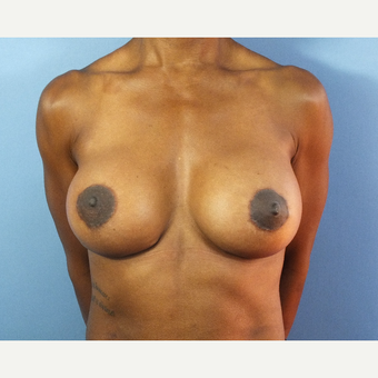 35-44 year old woman treated with Breast Lift with Implants after 3163154