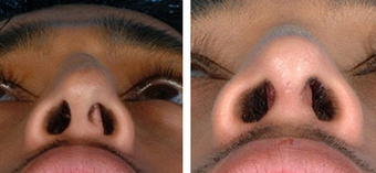Functional Rhinoplasty before 1208308