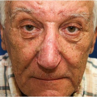 65-74 year old man treated with Nose Surgery