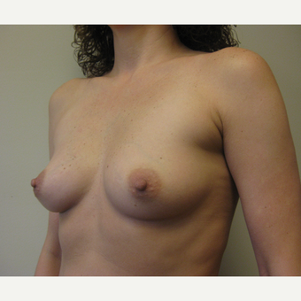 35-44 year old woman treated with Breast Augmentation before 3538927