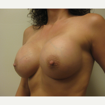 35-44 year old woman treated with Breast Augmentation after 3538927