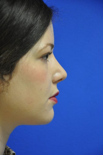 secondary rhinoplasty/revision rhinoplasty after 729727