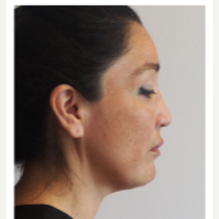 35-44 year old woman treated with Facelift before 3529994