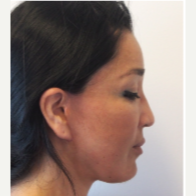 35-44 year old woman treated with Facelift after 3529994