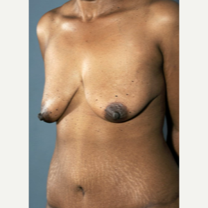 35-44 year old woman treated with Breast Lift before 3742400
