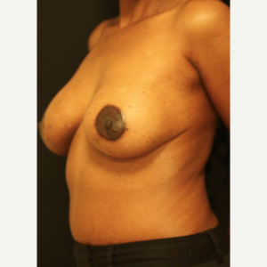 35-44 year old woman treated with Breast Lift after 3742400